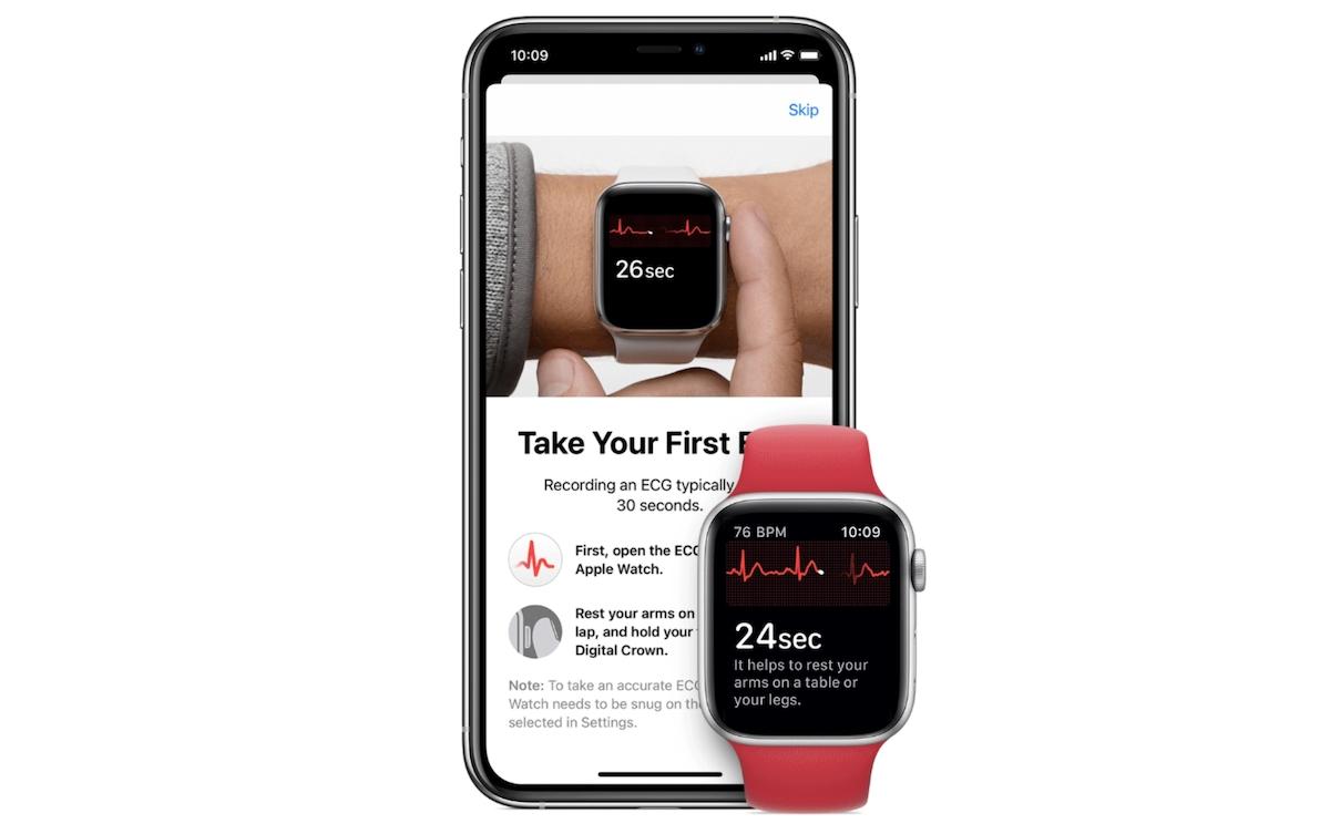 Apple Watch- ECG app